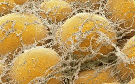 Células de gordura vistas por SEM