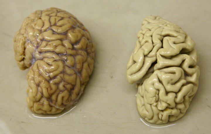 ASSUSTADOR: Alzheimer pode ser transmitida